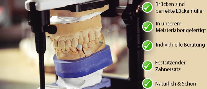 casa-dental-bruecken-vorteile