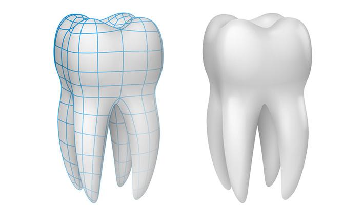 casa-dental-zahnschmelzschutz