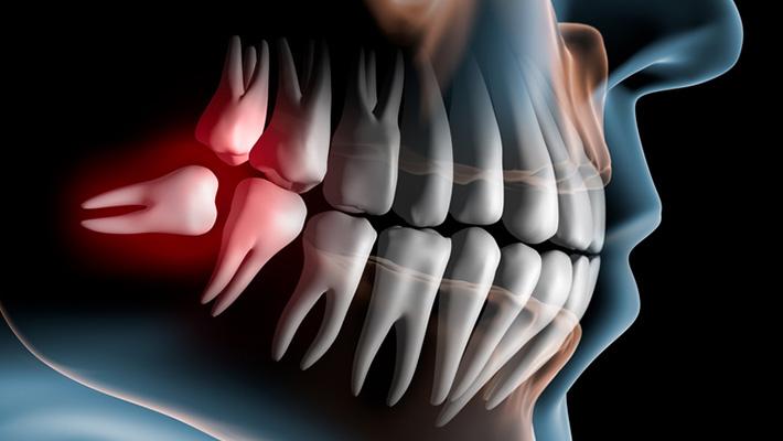 casa-dental-weisheitszahnentfernung