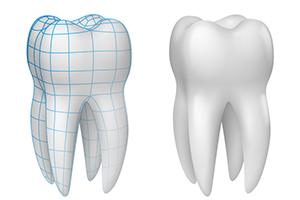 Zahnschmelzschutz