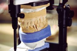 casa-dental-aesthetische-und-funktionelle-analyse2
