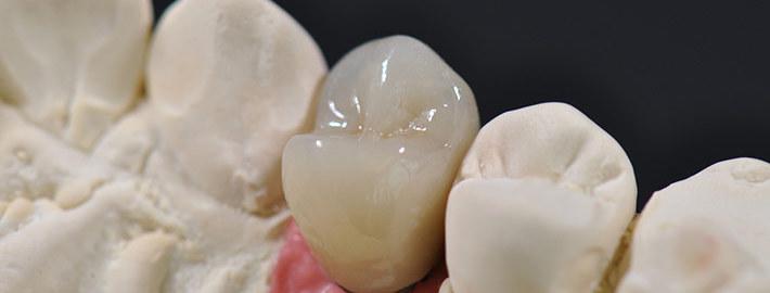 Große Zahnlücke