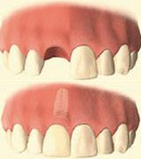 casa-dental-implantat-comic