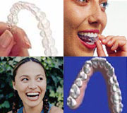 casa-dental-invisalign-minipic