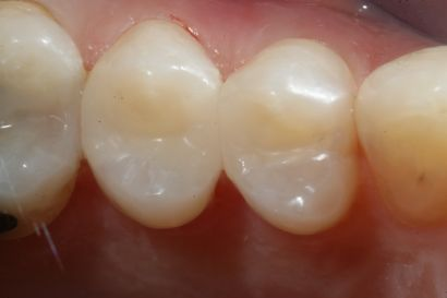 casa-dental-veneers-p1