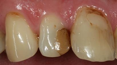 casa-dental-zahnfuellungen-austausch1