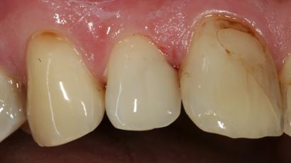 casa-dental-zahnfuellungen-austausch2