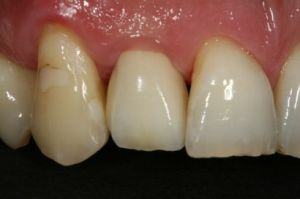 casa-dental-zahnimplantate-blog2