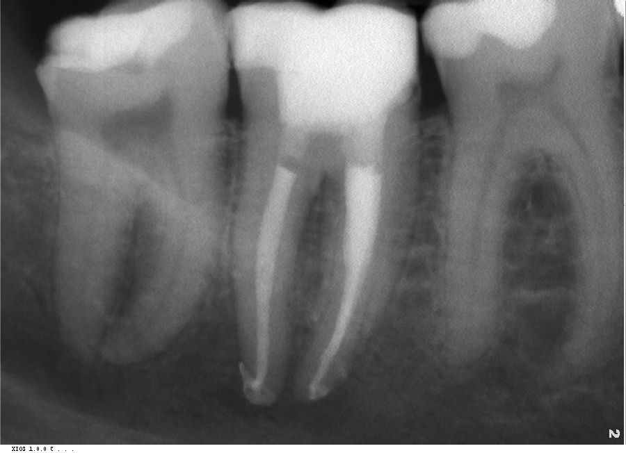 casa-dental-zahnwurzelbehandlung