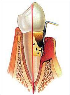 casa-detnal-parodontitis-beispiel